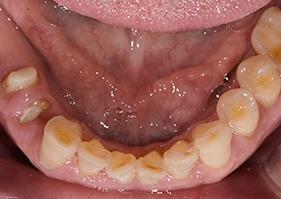 歯ぎしり 理由